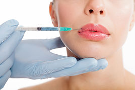 Dermal Fillers - Boston Medical