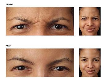 Botox Treatments at Boston Medical Aesthetics