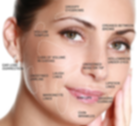 dermal filler injection sites