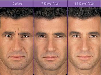 FDA-approved Botox Treatments