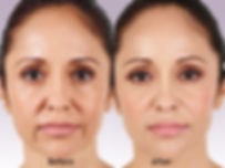 Juvederm XC - Hyaluronic Acid Filler - Boston Medical Aesthetics