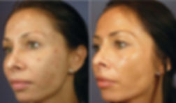 Chemical Peel - Boston Medical