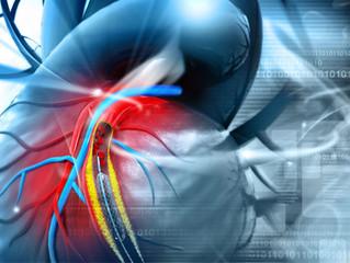 Cirurgia cardíaca X Stent