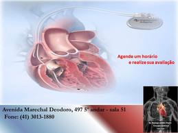 Implante de marca-passo