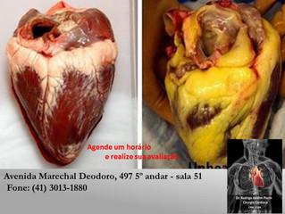 Diferença entre o coração saudável e coração obeso