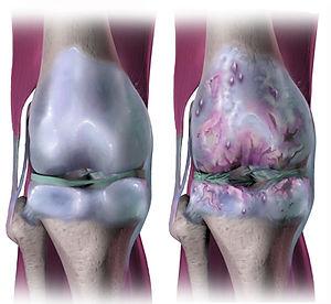 osteoarthritis_creativecommons.jpg