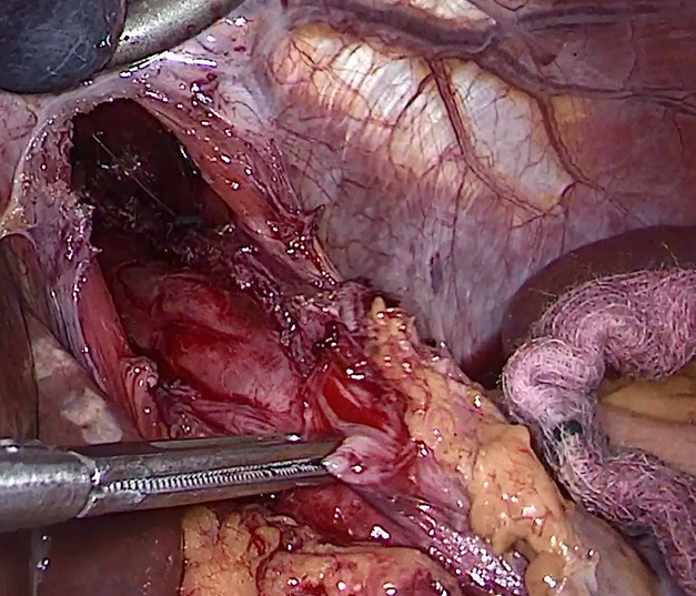 Laparoscopic Hellers Myotomy