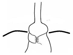 Type V Fundoplication Slip Herniation.pn