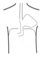 Type III Intra-Thoracic Stomach.png