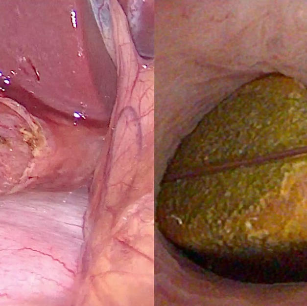 Laparoscopic Bile Duct Exploration
