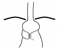 Type II In-Situ Fundoplication Slip.png