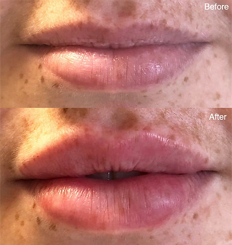 before and after lips after.jpg