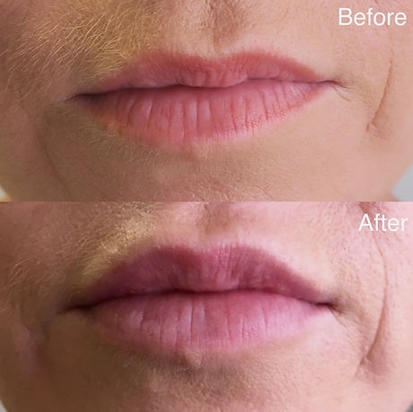 Before & After Clair Lips.jpg