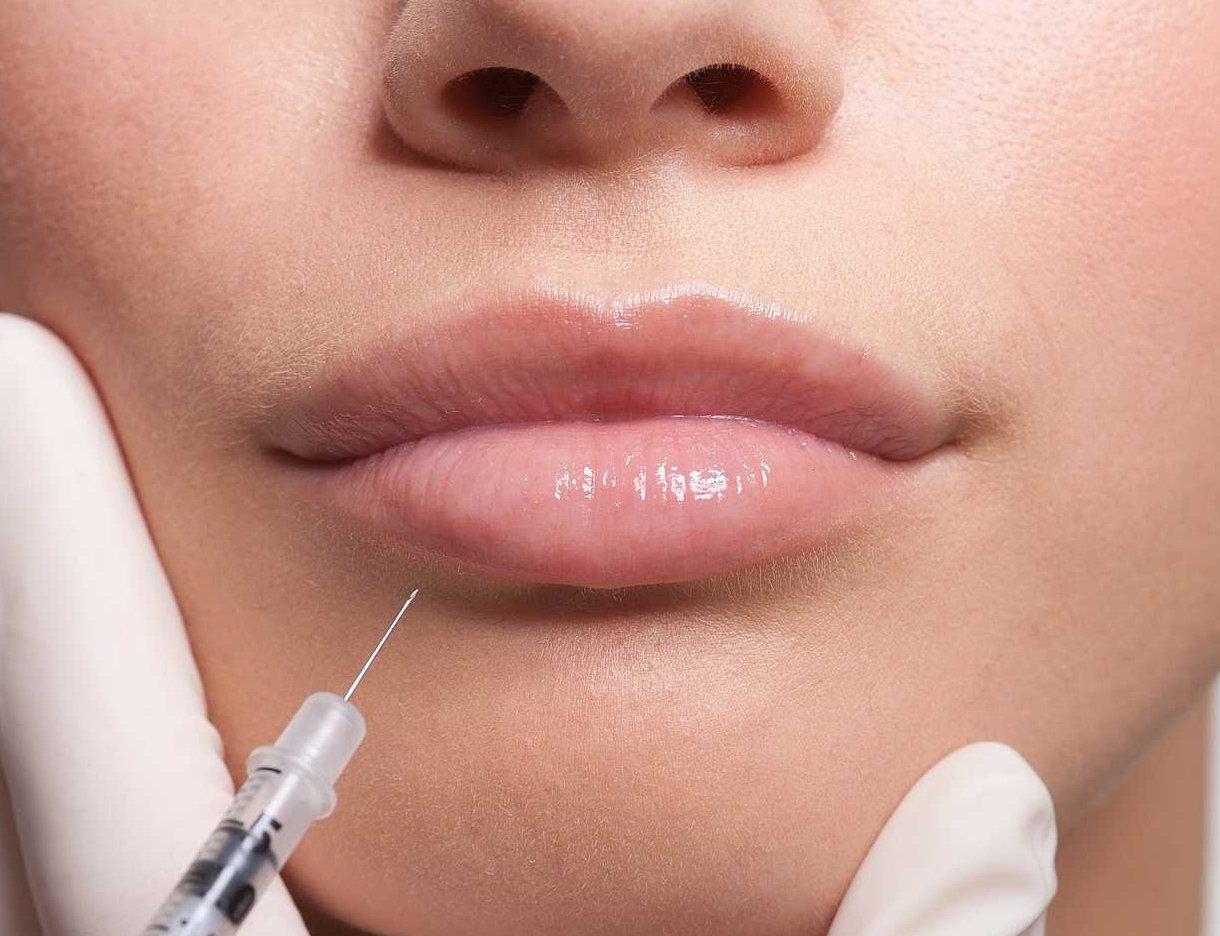 Dermal fillers - Lips