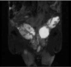 MRI 4.jpg