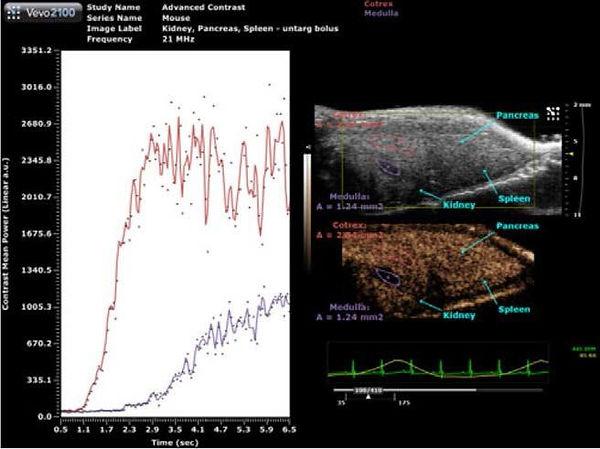 ultrasound 4.jpg