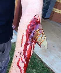 blood, glass, occupational first aid, training