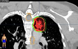 Stereotactic Body Radiation Therapy SBRT Lung cancer Radiosurgery