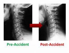 Your neck x-rays will show changes after a whiplash injury!