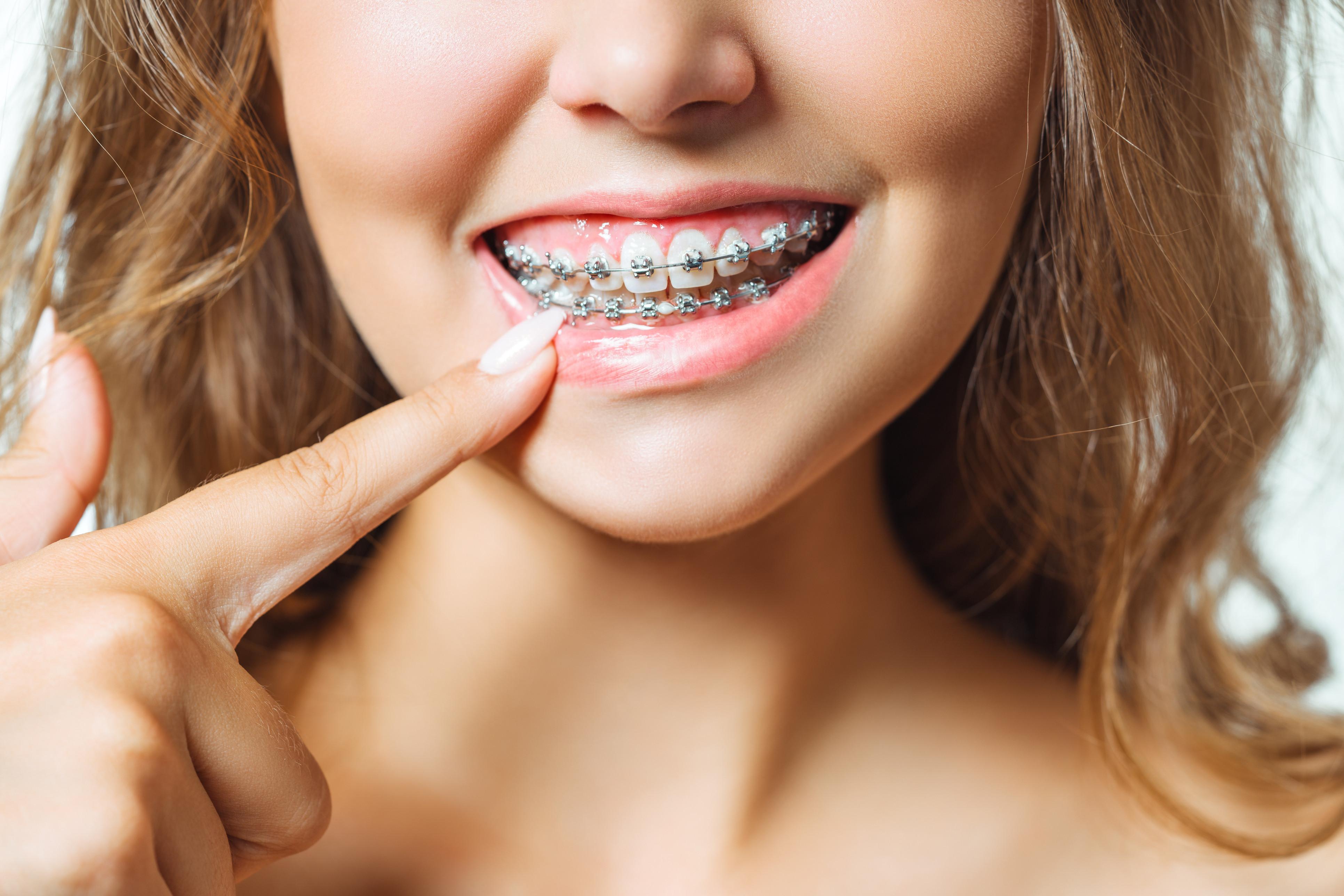 1. ortodontski pregled