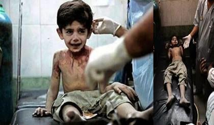 Guerra da Síria - Criança diz que quando morrer, contará tudo a Deus