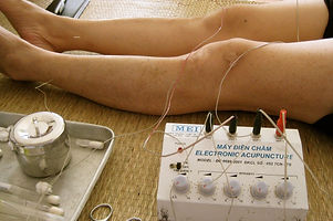 Elektroakupunktur