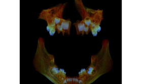 What Anglo Saxon teeth can tell us about modern health