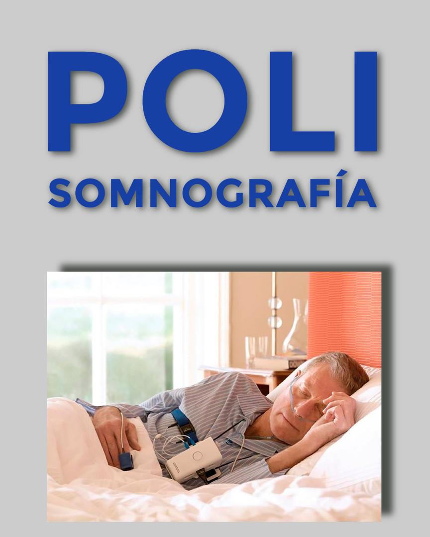 POLISOMNOGRAFÍA BASAL CON OXIMETRÍA (TIPO II)