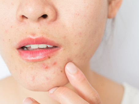 How do you get rid of acne fast?