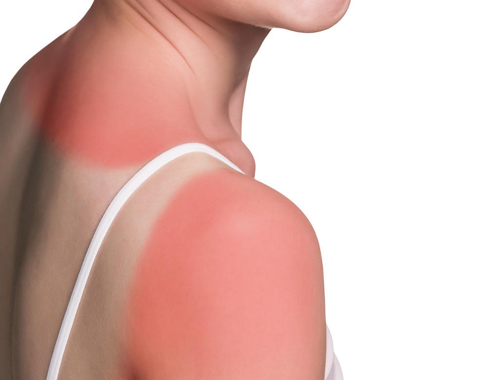 treating sunburn - fleximed first aid training