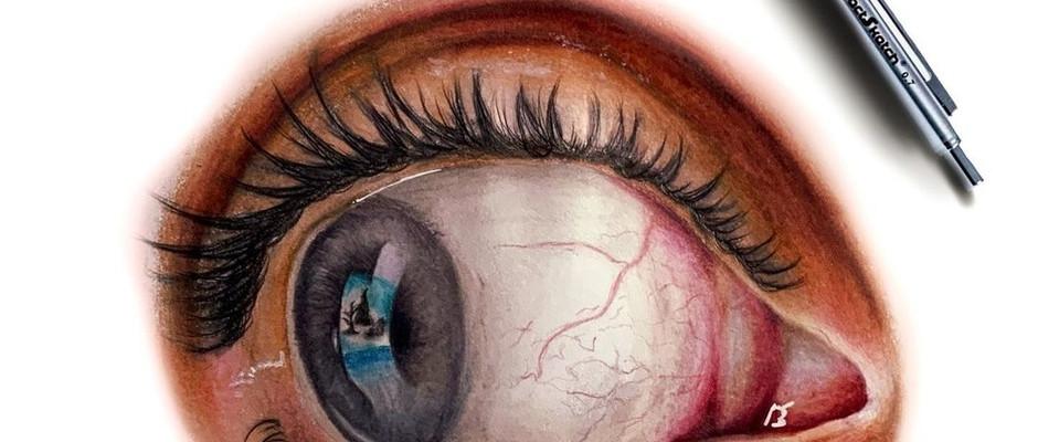 'Eyetastic'