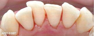 Dentes livres de tartaro e bacterias