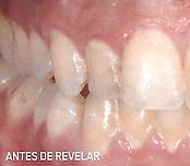 antes de usar o revelador - limpeza-dentaria