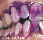 Forte presença de bacterias junto das gengivas