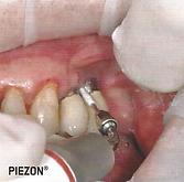 Pontas perioflow para limpeza dentaria de implantes