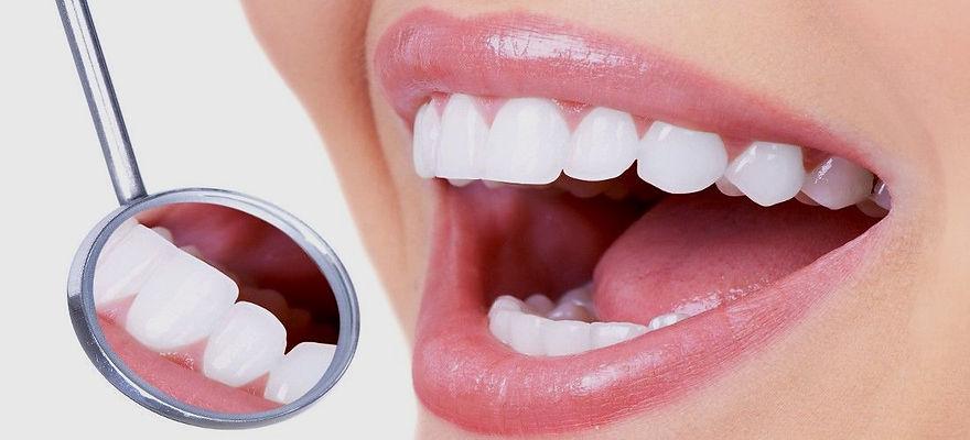destartarização-implantes-dentários