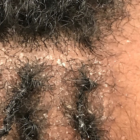 Do I Have Dry Scalp, or Dandruff?