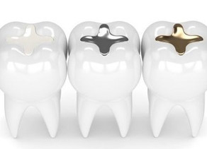 All about amalgam, why we only offer mercury free fillings