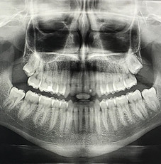 Digital X-rays taken at Madison No Fear Dentsitry produce far less radiation compared to others