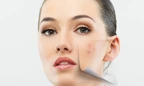Organic Acne Custom Facial