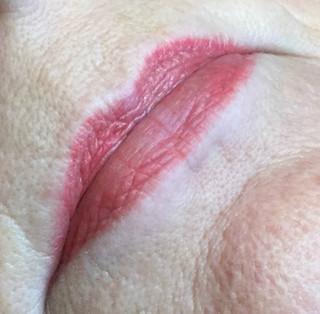 Lips Healed