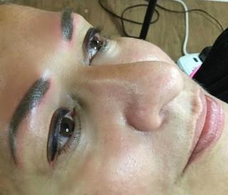 Permanent Eyeliner Healed