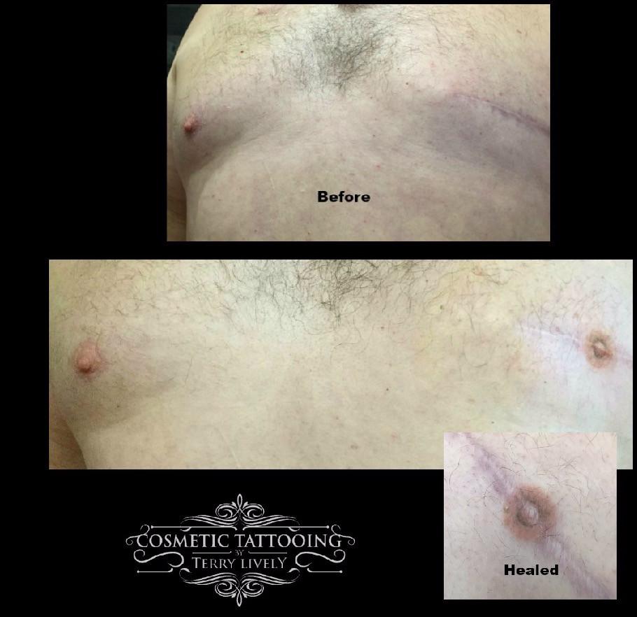 Male Mastectomy