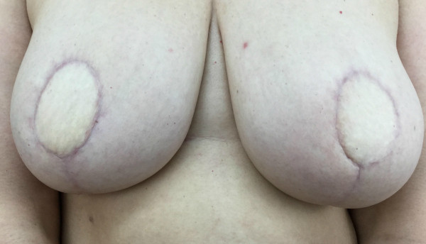 Scarring from breast reconstruction