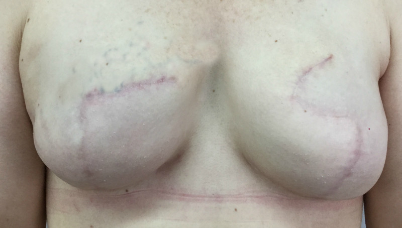 Scars from breast reconstruction