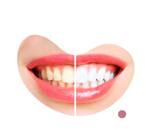 teeth-before-after-whitening-image.png