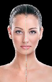 kisspng-rhytidectomy-eye-face-wrinkle-cr