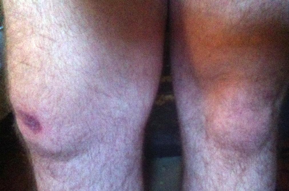 Chris' brusied Knee