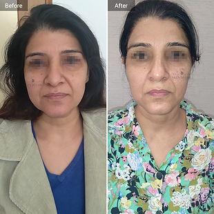 facial-rejuvenation.jpg