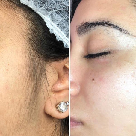 Skin Planing is it for everyone? Is it worth it for people with disabilities?